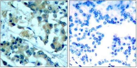 Immunohistochemistry (Formalin/PFA-fixed paraffin-embedded sections) - Anti-MEK1 + MEK2 antibody (ab131517)