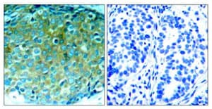 Immunohistochemistry (Formalin/PFA-fixed paraffin-embedded sections) - Anti-PAK1 antibody (ab131522)