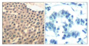 Immunohistochemistry (Formalin/PFA-fixed paraffin-embedded sections) - Anti-HDAC4 + 5 + 9 antibody (ab131524)