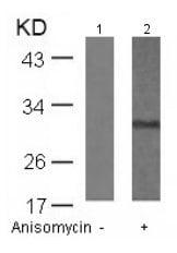 Western blot - Anti-RPS6 (phospho S235) antibody (ab131535)