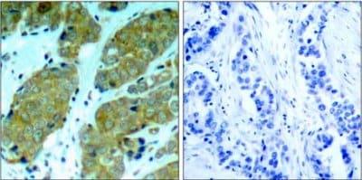 Immunohistochemistry (Formalin/PFA-fixed paraffin-embedded sections) - Anti-mTOR (phospho S2448) antibody (ab131538)