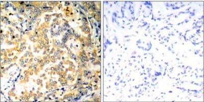 Immunohistochemistry (Formalin/PFA-fixed paraffin-embedded sections) - Anti-NFkB p100/NFKB2 antibody (ab131539)