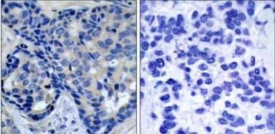 Immunohistochemistry (Formalin/PFA-fixed paraffin-embedded sections) - Anti-PYK2 (phospho Y402) antibody (ab131543)