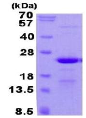 SDS-PAGE - Recombinant Human BAP18 protein (ab131691)