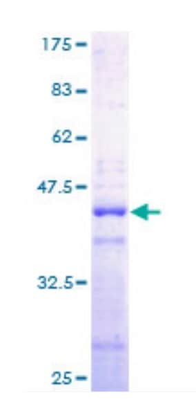 SDS-PAGE - Recombinant Human Histone H2A protein (Tagged) (ab132918)