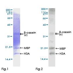 Functional Studies - Recombinant human CamKII gamma protein (ab132986)
