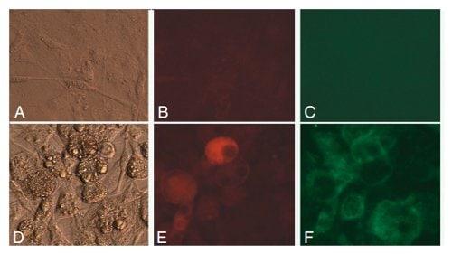 Functional Studies - LDL Uptake Assay Kit (Cell-Based) (ab133127)