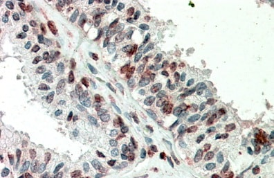Immunohistochemistry (Formalin/PFA-fixed paraffin-embedded sections) - Anti-ZIC3 antibody (ab133153)