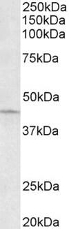 Western blot - Anti-ARPC1A antibody (ab133160)