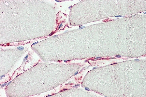 Immunohistochemistry (Formalin/PFA-fixed paraffin-embedded sections) - Anti-PI-15 antibody (ab133172)