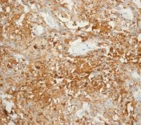Immunohistochemistry (Formalin/PFA-fixed paraffin-embedded sections) - Anti-Calcitonin antibody [EPR68(2)] (ab133235)