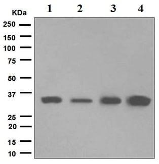 Western blot - Anti-TRAP alpha/TRAPA antibody [EPR5603] (ab133238)