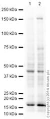 Western blot - Anti-CD11c antibody [EPR1346] (ab133246)