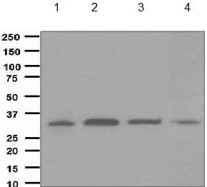 Western blot - Anti-CYB5R3 antibody [EPR3868] (ab133247)