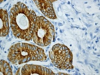 Immunohistochemistry (Formalin/PFA-fixed paraffin-embedded sections) - Anti-Cytokeratin 18 antibody [EPR1626] (ab133263)