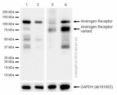 Western blot - Anti-Androgen Receptor antibody [EPR1535(2)] (ab133273)