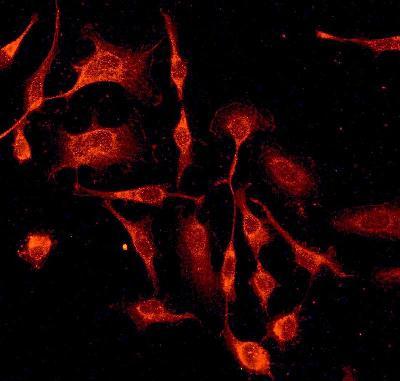 Immunocytochemistry/ Immunofluorescence - Anti-AVEN antibody [EPR4720] (ab133285)