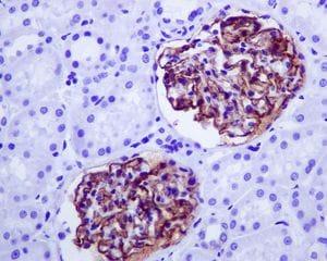 Immunohistochemistry (Formalin/PFA-fixed paraffin-embedded sections) - Anti-CD35 antibody [EPR6601] (ab133293)