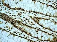 Immunohistochemistry (Formalin/PFA-fixed paraffin-embedded sections) - Anti-EWSR1/EWS antibody [EPR4648] (ab133318)