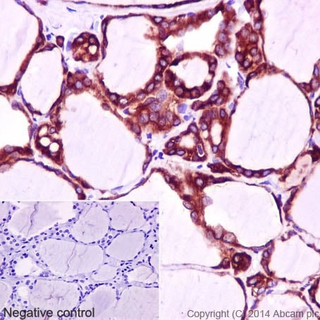 Immunohistochemistry (Formalin/PFA-fixed paraffin-embedded sections) - Anti-Thyroid Peroxidase/TPO antibody [EPR5379] (ab133322)
