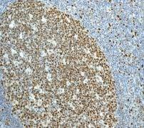 Immunohistochemistry (Formalin/PFA-fixed paraffin-embedded sections) - Anti-MCM2 antibody [EPR3727] (ab133325)
