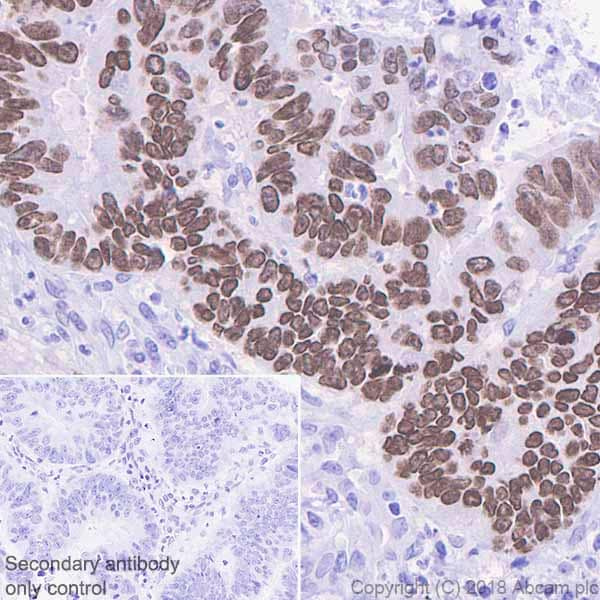 Immunohistochemistry (Formalin/PFA-fixed paraffin-embedded sections) - Anti-SATB2 antibody [EPNCIR130B] (ab133328)