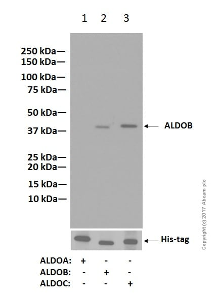 Western blot - Anti-Aldolase B + Aldolase C antibody [EPR3137] (ab133333)