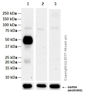 Western blot - Anti-CD14 antibody [EPR3653] (ab133335)