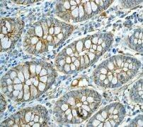 Immunohistochemistry (Formalin/PFA-fixed paraffin-embedded sections) - Anti-NEAS antibody [EPR3016] (ab133342)