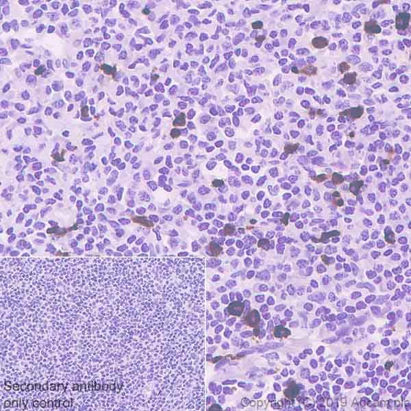 Immunohistochemistry (Formalin/PFA-fixed paraffin-embedded sections) - Anti-CD90 / Thy1 antibody [EPR3133] (ab133350)