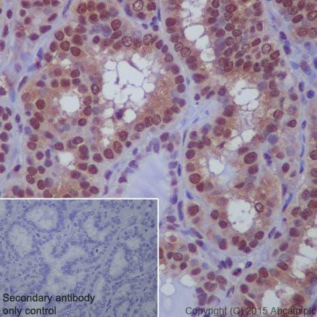 Immunohistochemistry (Formalin/PFA-fixed paraffin-embedded sections) - Anti-Sumo 1 antibody [EP298] (ab133352)