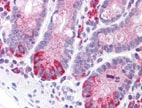 Immunohistochemistry (Formalin/PFA-fixed paraffin-embedded sections) - Anti-LRRN4 antibody (ab133372)