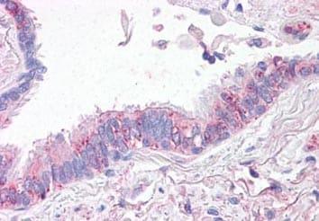 Immunohistochemistry (Formalin/PFA-fixed paraffin-embedded sections) - Anti-SLC31A1 / CTR1 antibody (ab133385)