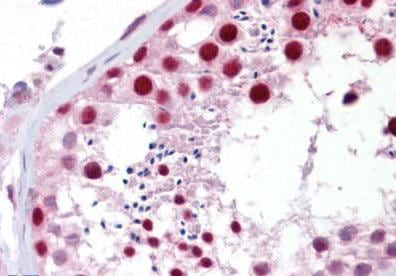 Immunohistochemistry (Formalin/PFA-fixed paraffin-embedded sections) - Anti-Apc1 antibody (ab133397)