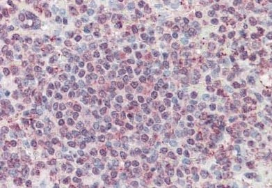 Immunohistochemistry (Formalin/PFA-fixed paraffin-embedded sections) - Anti-CD70 antibody (ab133398)