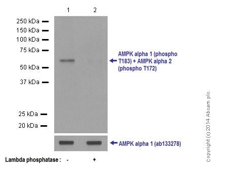 Western blot - Anti-AMPK alpha 1 (phospho T183) + AMPK alpha 2 (phospho T172) antibody [EPR5683] (ab133448)