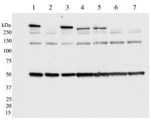 Western blot - Anti-LRRK2 (phospho S910) antibody [UDD1 15(3)] (ab133449)