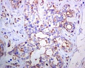 Immunohistochemistry (Formalin/PFA-fixed paraffin-embedded sections) - Anti-Tuberin (phospho S1254) antibody [EPR5682] (ab133454)