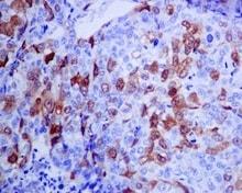 Immunohistochemistry (Formalin/PFA-fixed paraffin-embedded sections) - Anti-CDK1+CDK2+CDK3+CDK5 (phospho Y15) antibody [EPR7875] (ab133463)
