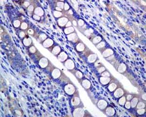 Immunohistochemistry (Formalin/PFA-fixed paraffin-embedded sections) - Anti-PIST antibody [EPR4080(2)] (ab133472)