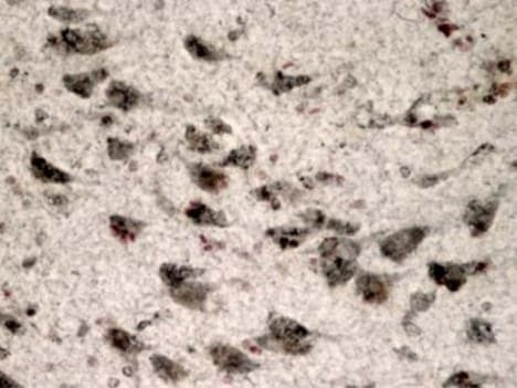 Immunohistochemistry (Formalin/PFA-fixed paraffin-embedded sections) - Anti-LRRK2 antibody [MJFF3 (c69-6)] (ab133475)