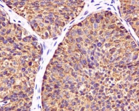Immunohistochemistry (Formalin/PFA-fixed paraffin-embedded sections) - Anti-Ube1L antibody [EPR4269(2)] (ab133479)