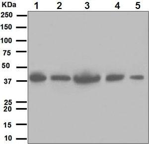 Western blot - Anti-LRPAP1 antibody [EPR3328] (ab133488)
