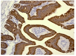 Immunohistochemistry (Formalin/PFA-fixed paraffin-embedded sections) - Anti-Cytokeratin 19 antibody [EPNCIR127B] (ab133496)