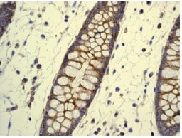 Immunohistochemistry (Formalin/PFA-fixed paraffin-embedded sections) - Anti-Flotillin 1 antibody [EPR6041] (ab133497)