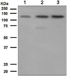 Western blot - Anti-Eph receptor A2 antibody [EP4760] (ab133501)