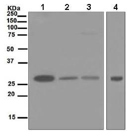 Western blot - Anti-PSMA7/HSPC antibody [EPR5836] (ab133502)