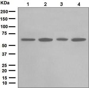 Western blot - Anti-Chk2 antibody [EPR5528] (ab133505)