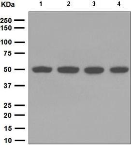Western blot - Anti-TIP49A antibody [EPR6028] (ab133513)