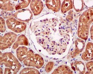Immunohistochemistry (Formalin/PFA-fixed paraffin-embedded sections) - Anti-HPD antibody [EPR5297] (ab133515)